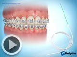 flossing video